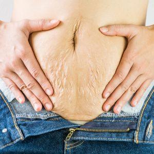 Bauchdeckenstraffung nach der Schwangerschaft – Wann ist der richtige Zeitpunkt?