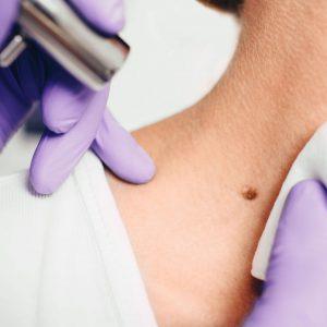Wann ist eine chirurgische Entfernung von Hautveränderungen sinnvoll?