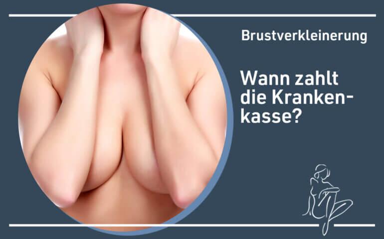 Wann zahlt die Krankenkasse eine Brustverkleinerung?