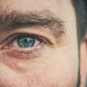 Lidstraffung beim Mann – Schluss mit Schlupflidern und müdem Blick